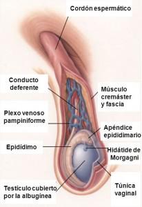 testículo doloroso en niños, testículo inflamado causas, testículo inflamado y duro en niños, testículo inflamado y dolor en niños, inflamación escrotal en niños