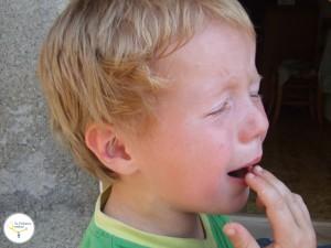 accidentes en niños, quemaduras en niños, dolor en quemaduras, quemaduras en niños remedios caseros