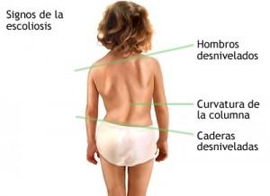 escoliosis en niños y adolescentes, tratamiento de la escoliosis, escoliosis en niños pequeños