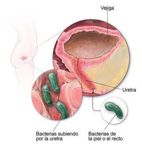 itu patogenia