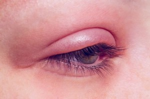Barley infection on the eye