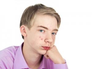 acne juvenil, causas acne, como se forma el acne, que es el acne, soluciones contra los granos, granos en niños, tratamientos acne