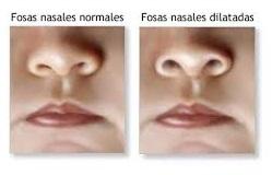 aleteo nasal niños y bebes pediatra en linea consulta online
